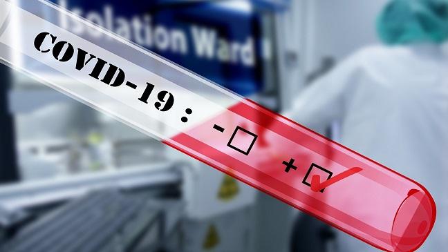 La prueba de PCR es fraudulenta.
